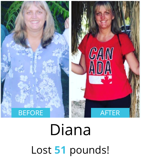 Diana Before & After| Shulman Weightloss