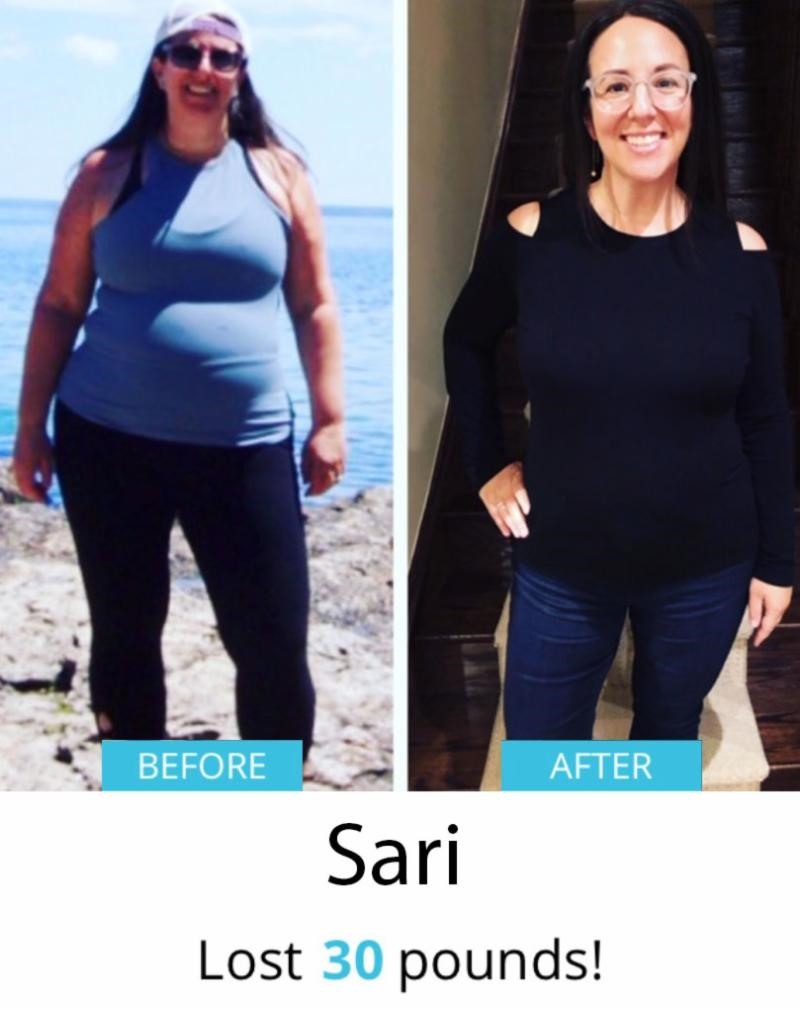 Sari Before & After | Shulman Weightloss