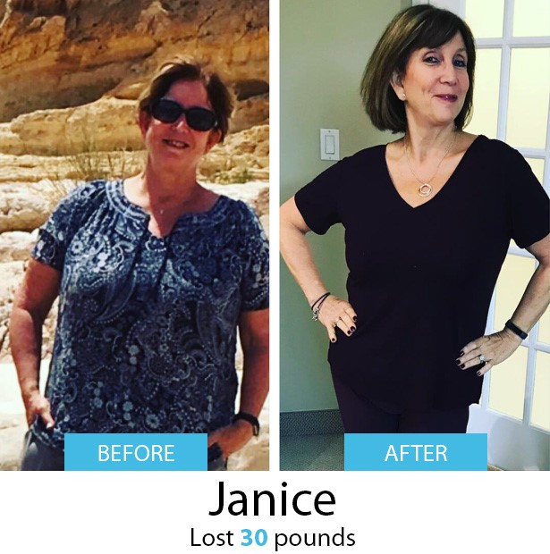 Janice Before & After | Dr. Joey Shulman Weightloss Clinic